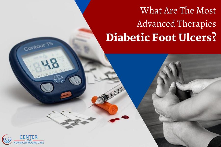Diabetic leg ulcer clinic Ventura