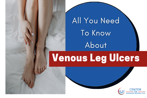 Venous leg ulcers camarillo